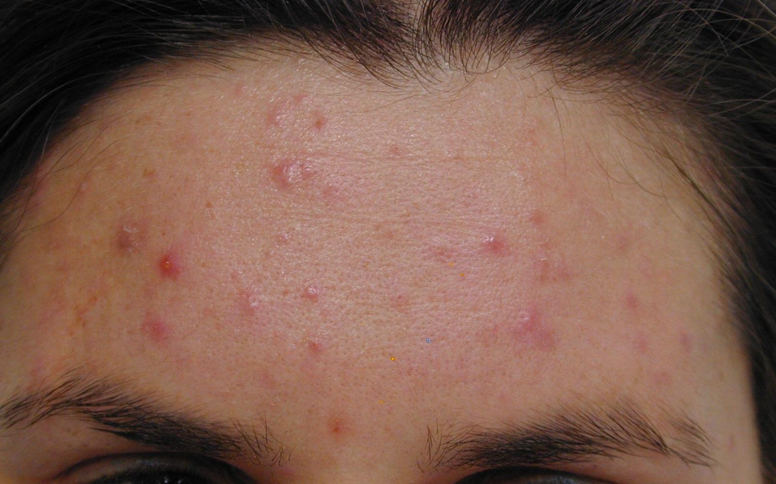 4_acne_antes_cortesia_Dr.-Drosner-e1542359350806