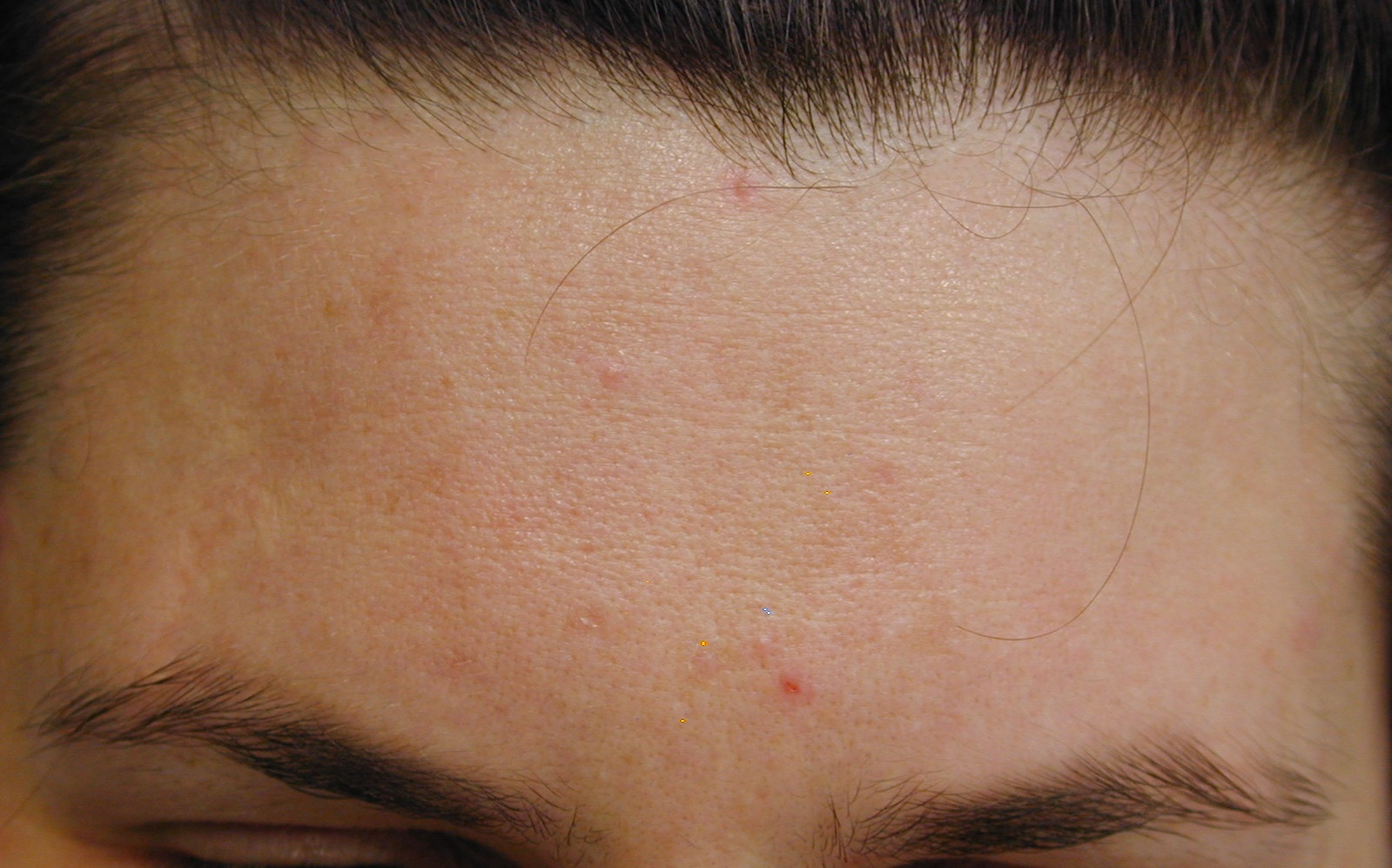 4_acne_despues3PR_cortesia_Dr. Drosner_cortada